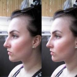 На фото показан нос до и после удаления горбинки на носу