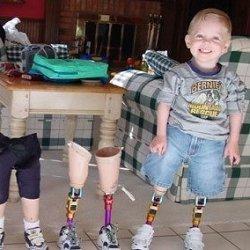 ребенок инвалид фото