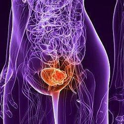 рак мочевого пузыря фото